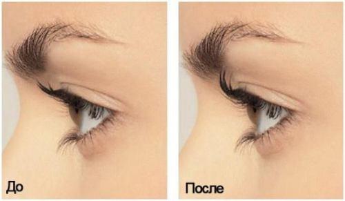 Применение репейного масла для волос до и после фото