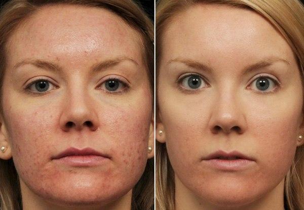 ретиноловый пилинг фото до и после