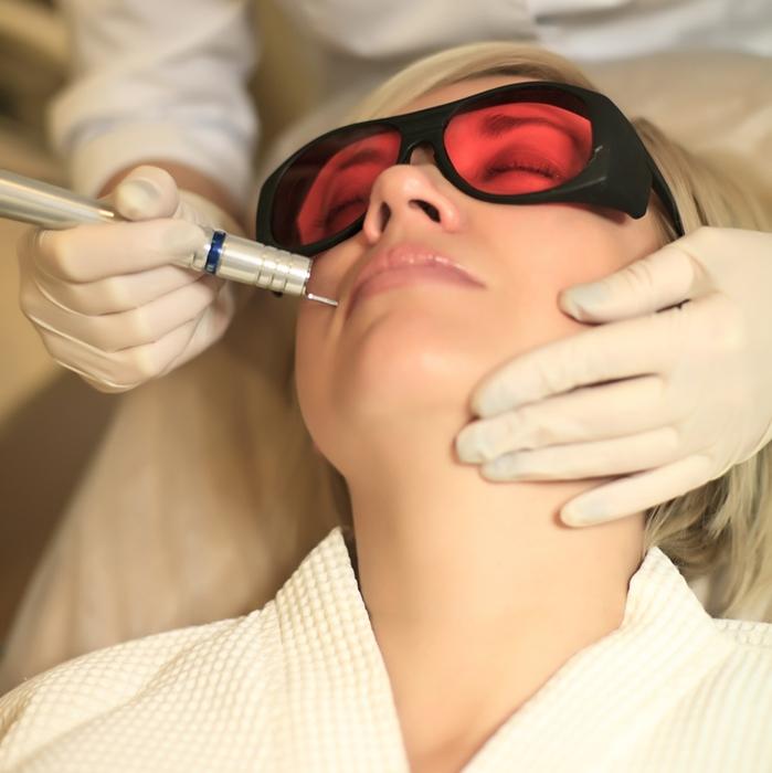 Удаление бородавок на лице жидким азотом отзывы