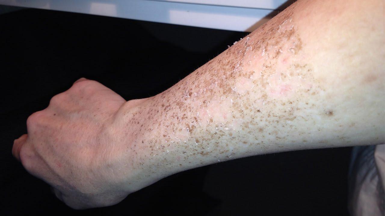 Соль отбеливает кожу