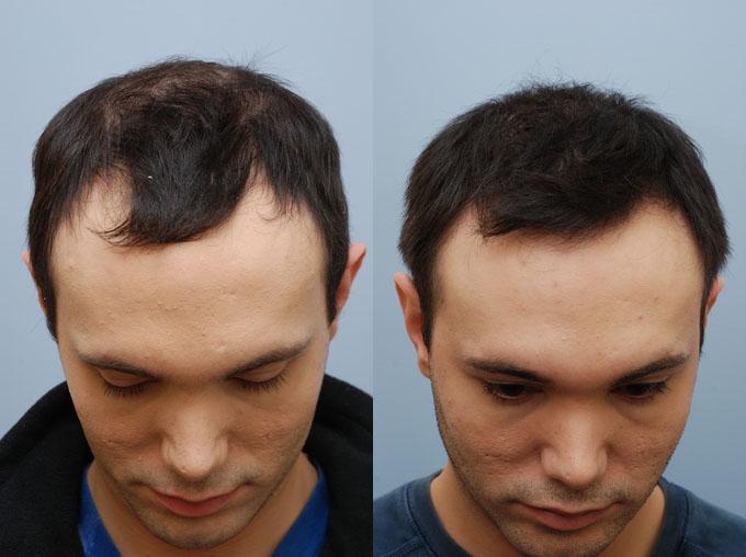 Плазмолифтинг для волос для мужчин