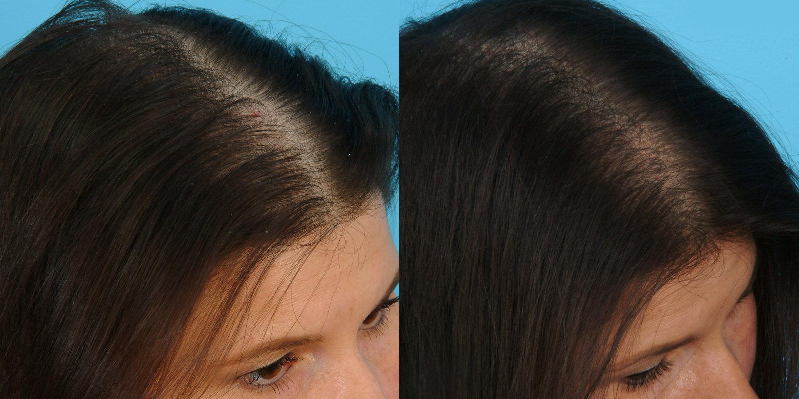 Плазма лифтинг для волос
