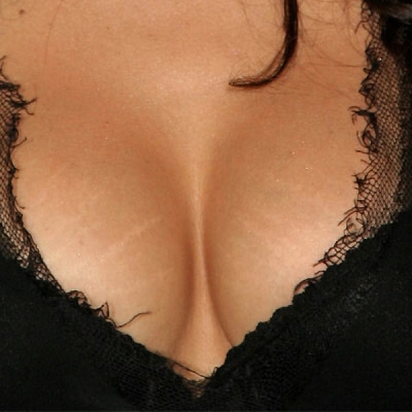 Как убрать растяжки на грудях в домашних