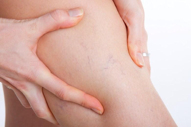 Отеки ног при варикозе лечение