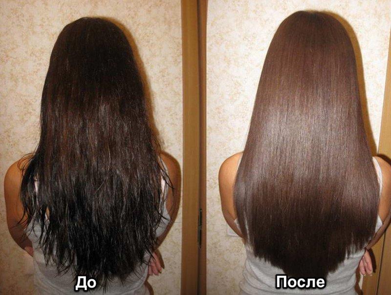 Лазерное лечение волос аппарат купить