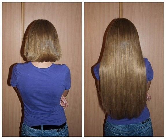 средства для быстрого роста волос отзывы