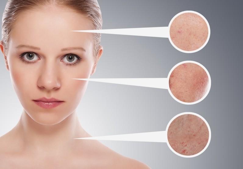 Маски для чувствительной проблемной кожи в домашних условиях