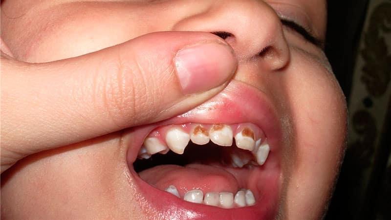 комментарии почему у дочке крошатся молочные зубки ароматы