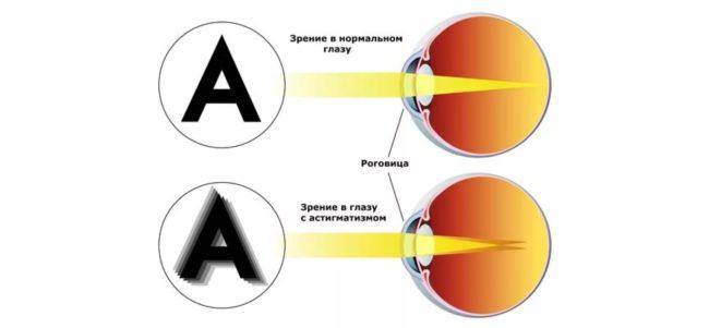 Делать или нет операцию по восстановлению зрения