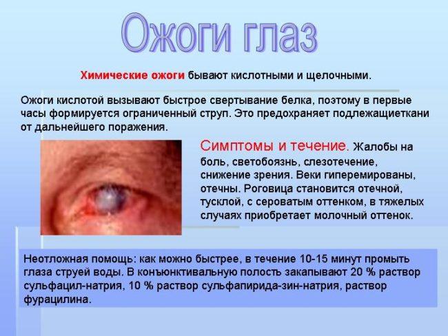 Попадание в глаз химических веществ
