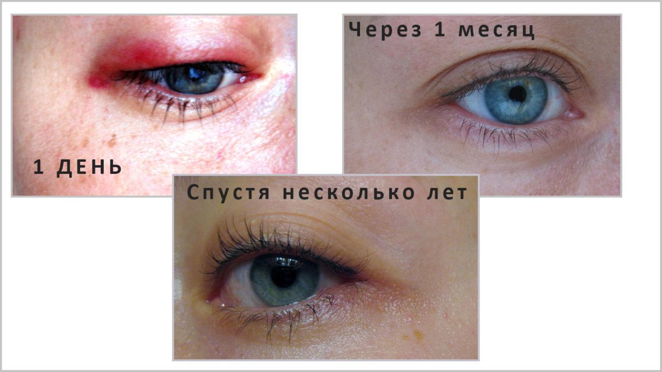 Перманентный макияж глаз межресничный отзывы