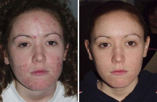 атравматическая чистка лица отзывы фото до и после