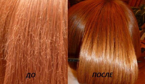 Выпадение волос соя