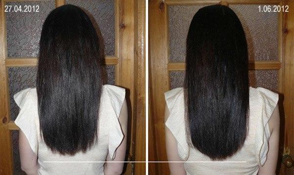 никотиновая кислота для волос в таблетках