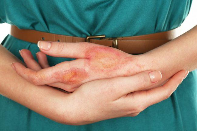 Химический ожог кожи лечение в домашних условиях фото пошагово