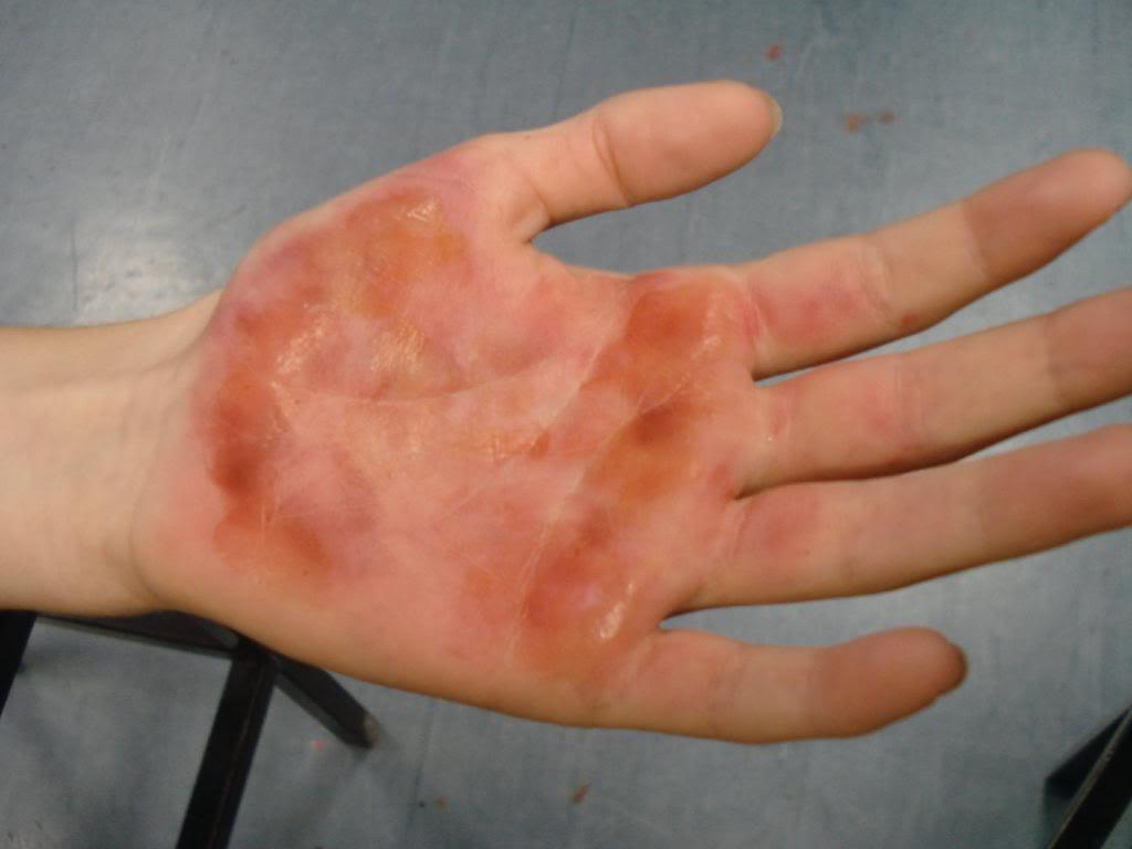 Чем помазать ожог от кипятка на руке в домашних условиях