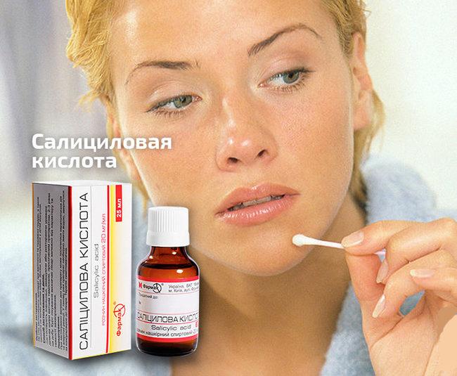 салициловая кислота от аллергии на лице