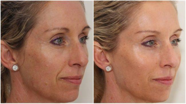 скульптурный массаж лица фото до и после отзывы