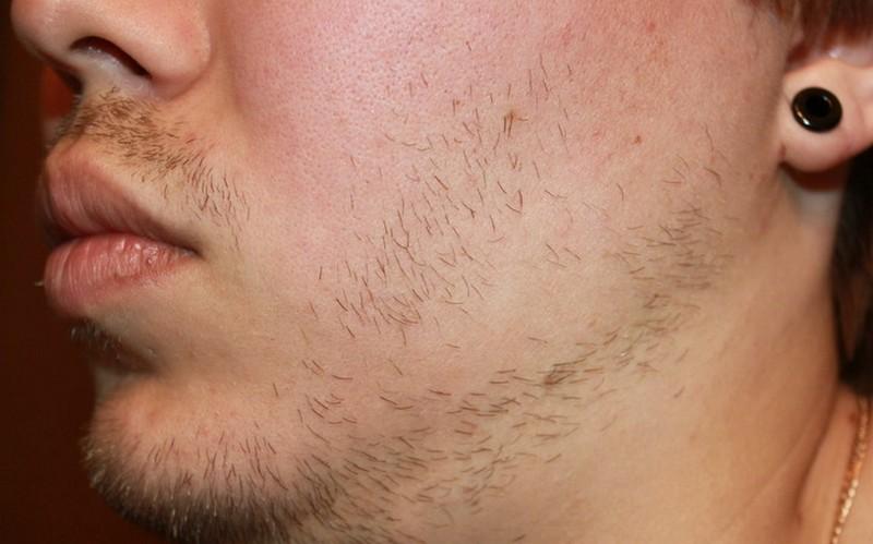 Что делать с прыщами на бороде