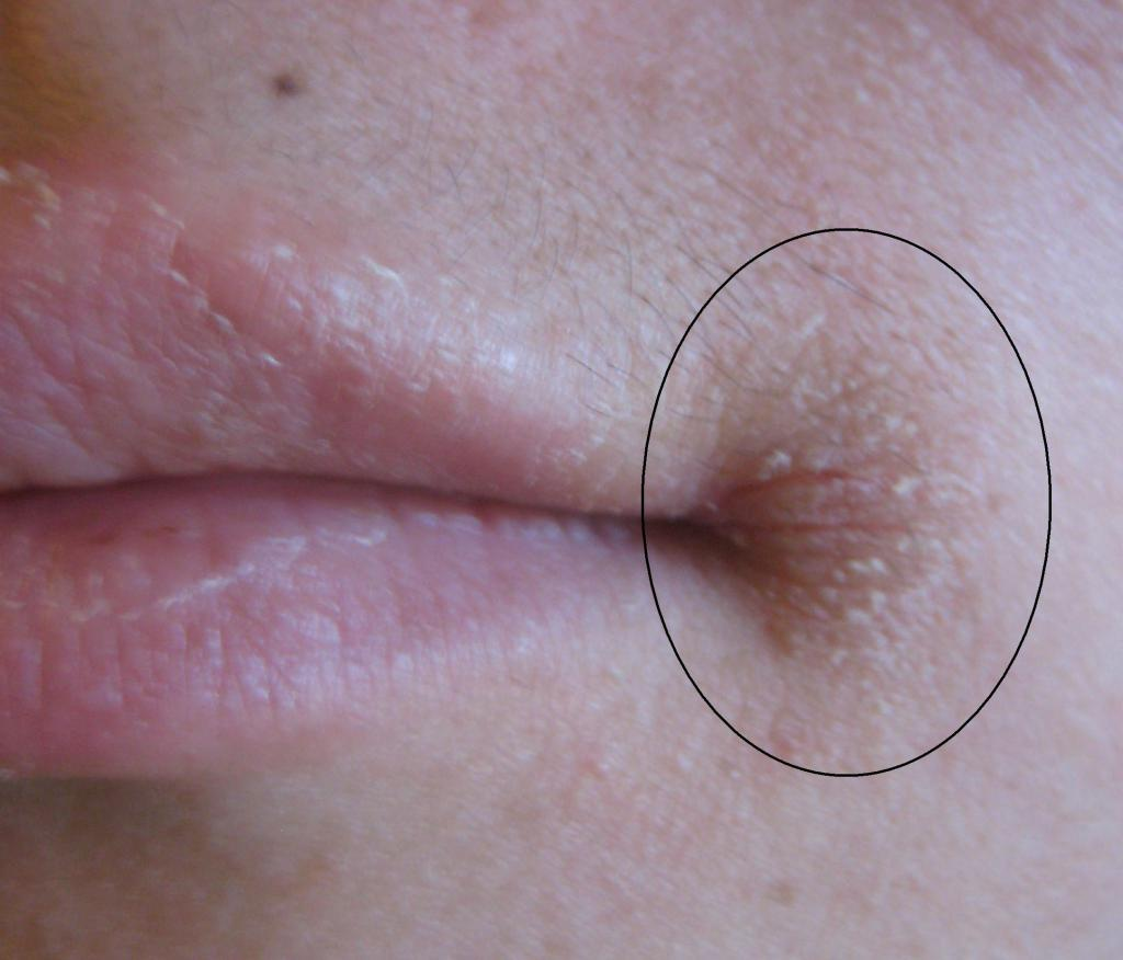 Как лечить грибок в уголках губ