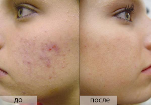 Удалить шрамы с лица в домашних условиях