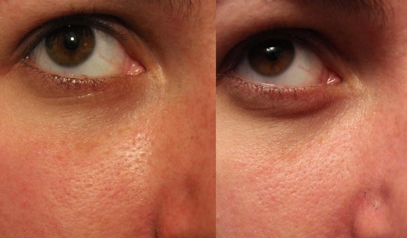 Как расширить поры на лице перед чисткой? 61