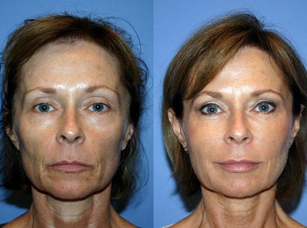 Плазмолифтинг лица фото до и после цена