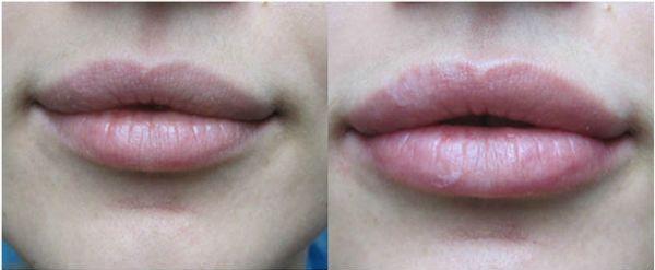 Увеличение губ редженесс отзывы