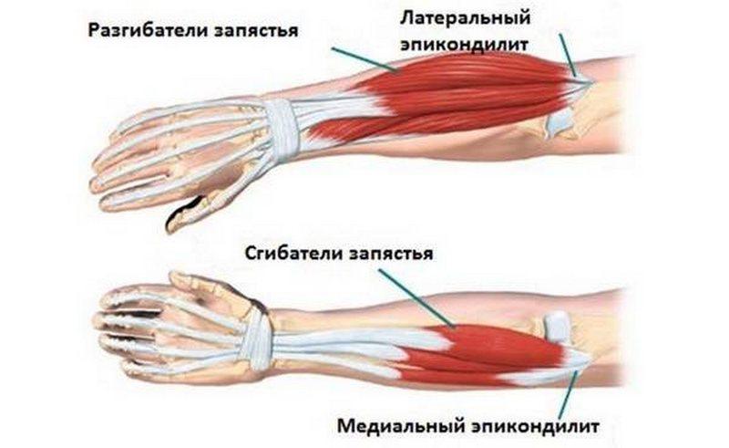 лечение болезней локтевого сустава эпикондилит