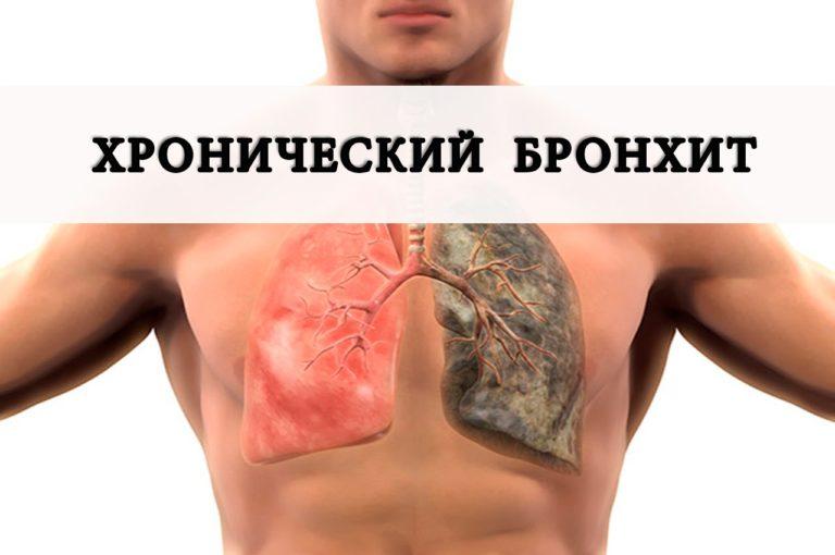 Как лечить воспаления лёгких в домашних условиях 654