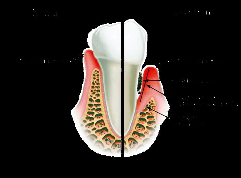 Шатается зуб из за десен.как укрепить десны