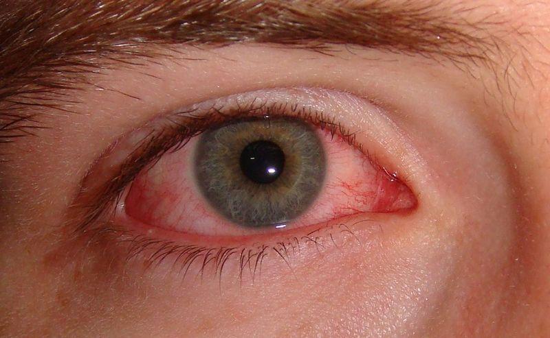 Почему красные глаза когда просыпаешься