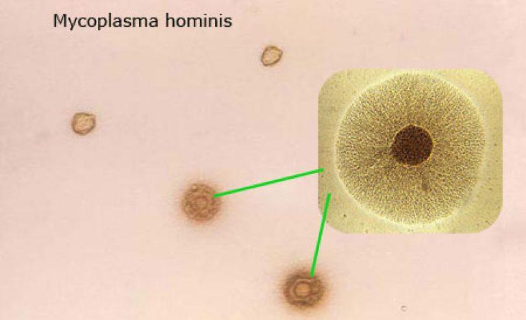 патогенный штамм микоплазмы