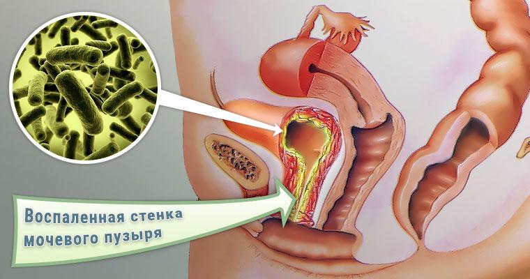 Как лечит грибок мочевого пузыря
