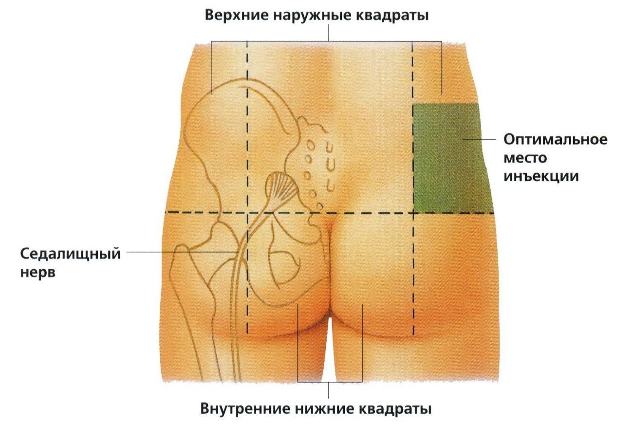 Как делать укол в ягодицу 33