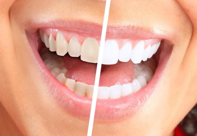 Как сделать чистку зубов в домашних условиях