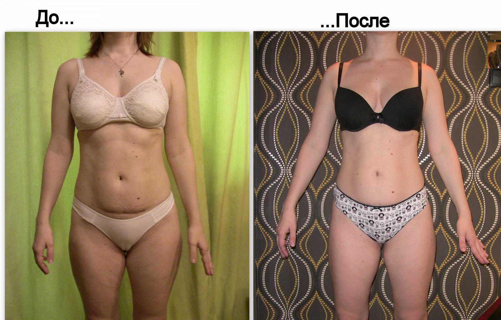 Радикальные методы похудения
