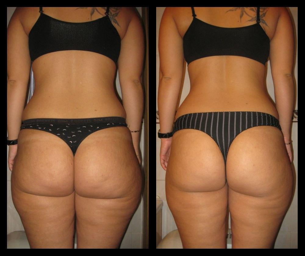 Растяжки на бедрах при похудении