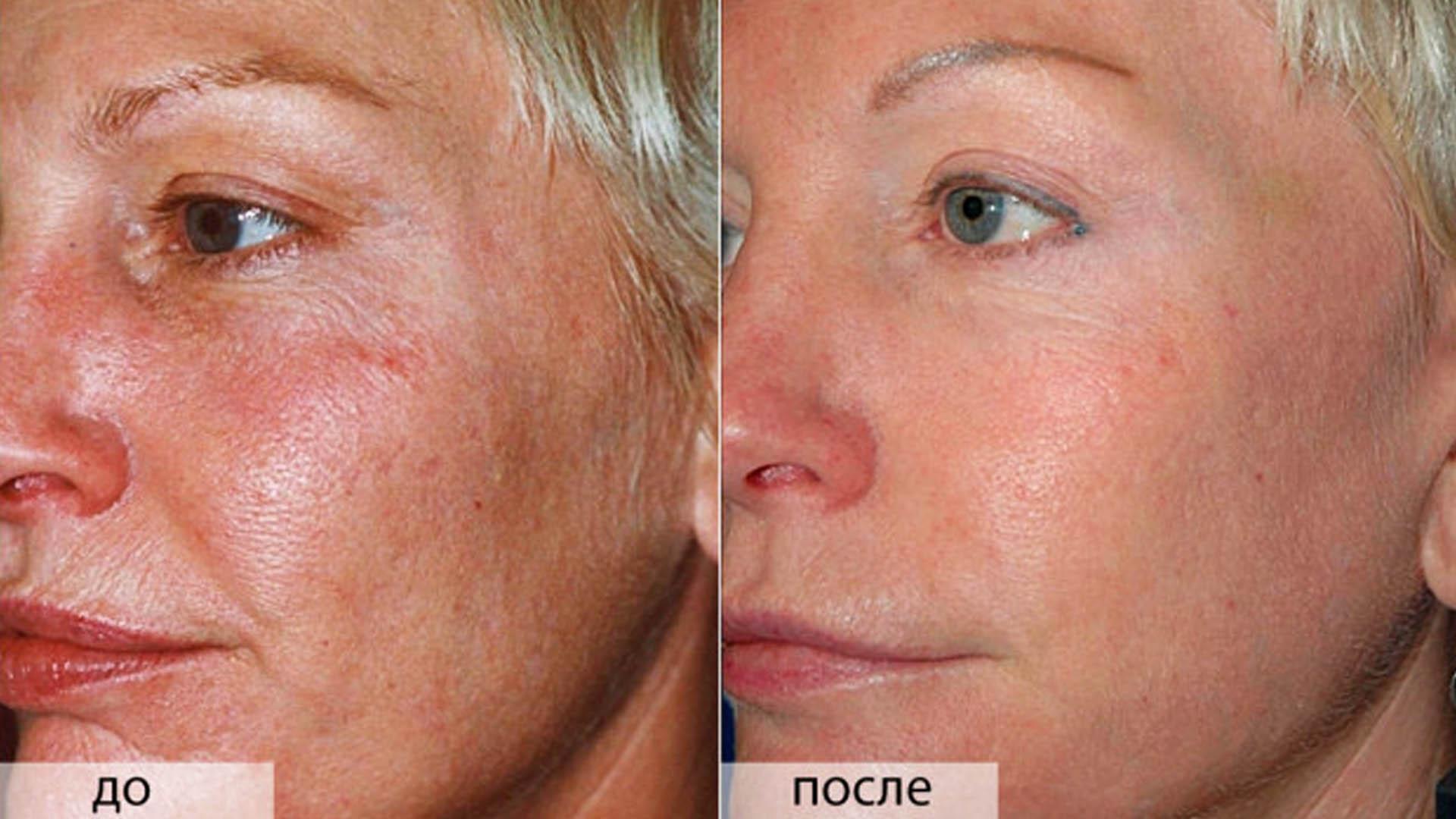 химический глубокий пилинг лица фото до и после