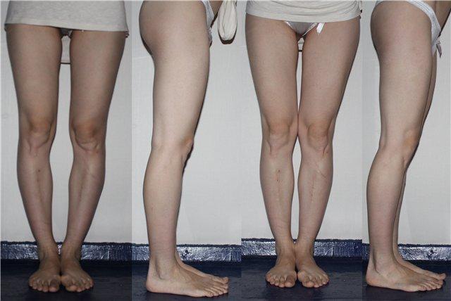 Кривыми ногами картинки