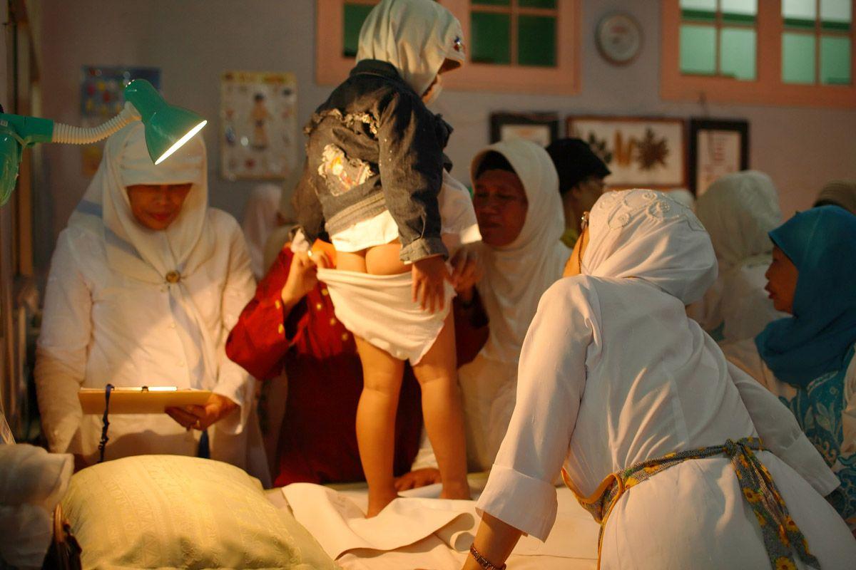 37caefd06617 Женское обрезание — что это и зачем. Женское обрезание до и после ...