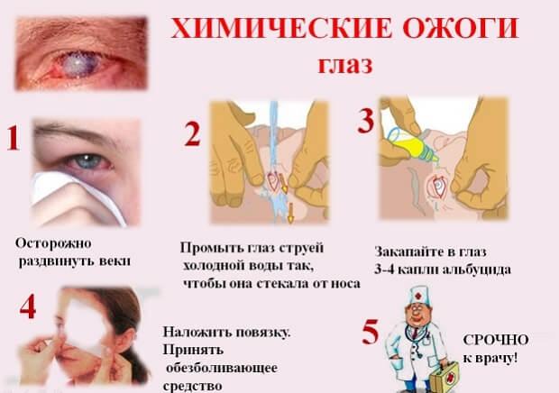 Ожог лица: первая помощь при термическом и химическом поражении, лечение