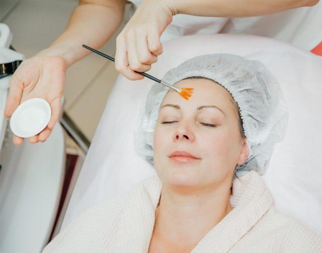 Пилинг ТСА для очищения кожи лица. Как проводится химический пилинг ТСА в салонных и домашних условиях. Уход за кожей после ТСА пилинга
