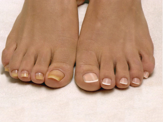 Как размягчить больные ногти на ногах