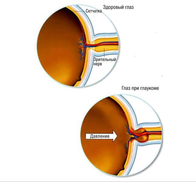 Где померить глазное давление